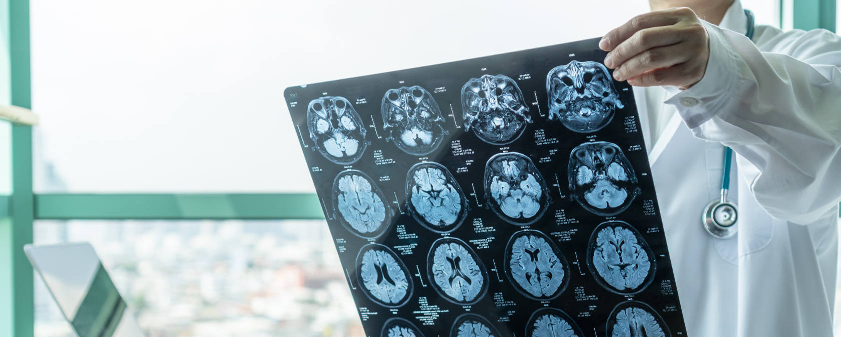 A doctor reviews a sheet of brain scans